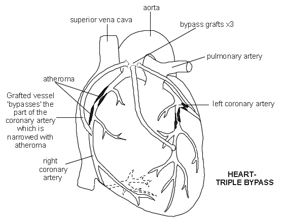 Cabg Diagram
