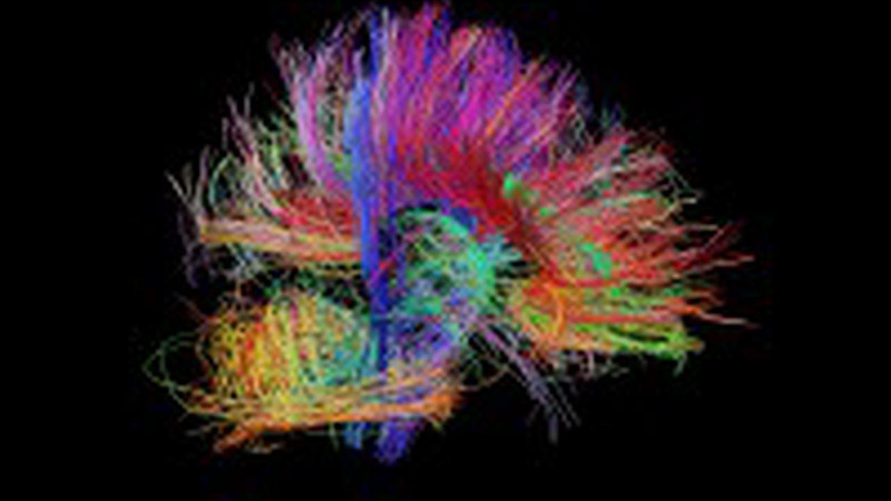 Brain Wiring Diagrams Helifreak