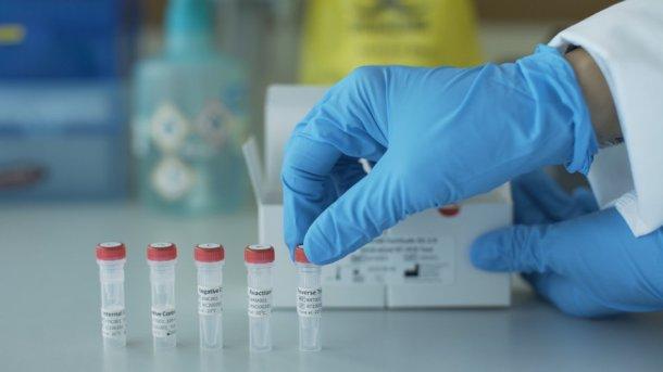 How Coronavirus Test Kits Work