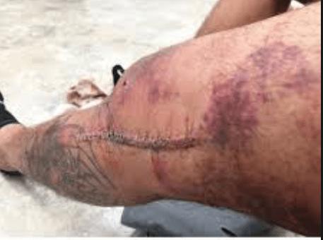 Image result for tony ferguson knee surgery