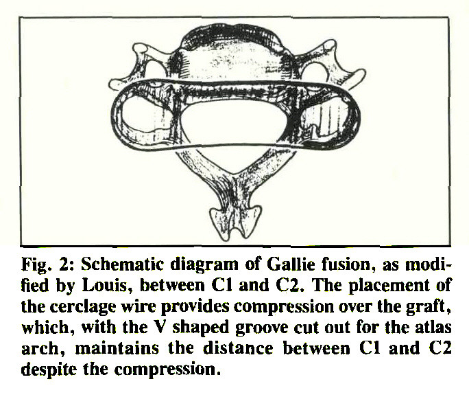 Internal Fixation of Fractures and Dislocations in the