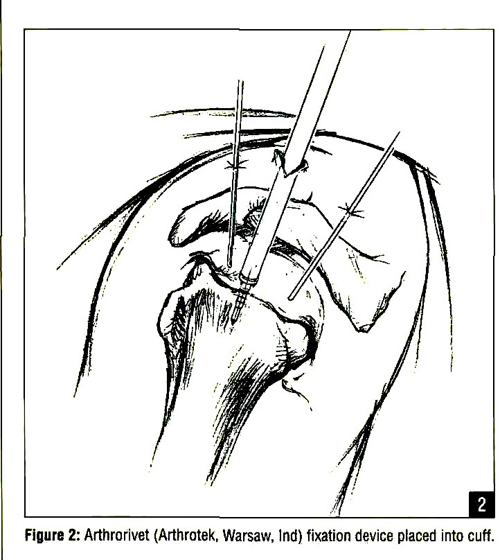 Subscapularis Tendon Insertion