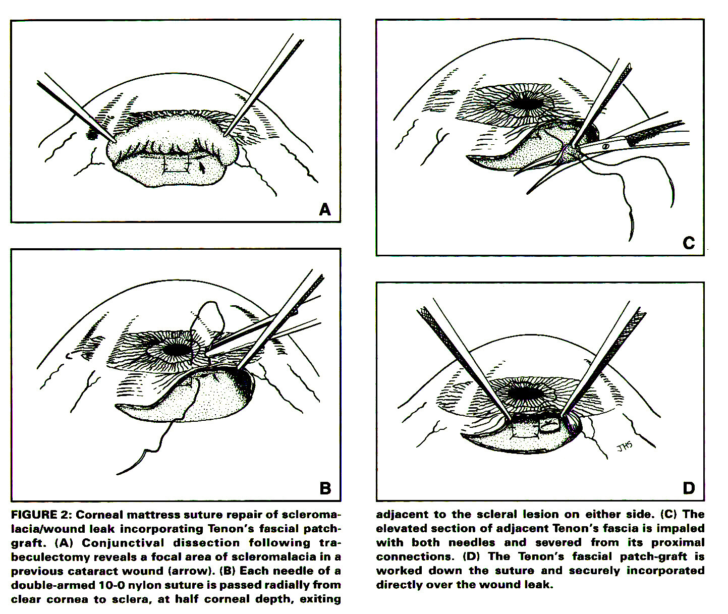 Applications for a Corneal Mattress Suture in Anterior