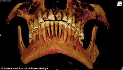 Encuentran momia egipcia de 2.100 años de antigüedad con empastes en los dientes.