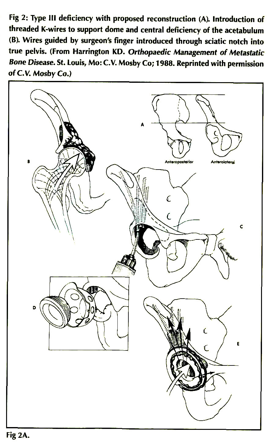 PATHOLOGIC FRACTURES OF THE ACETABULUM AND THE PELVIS