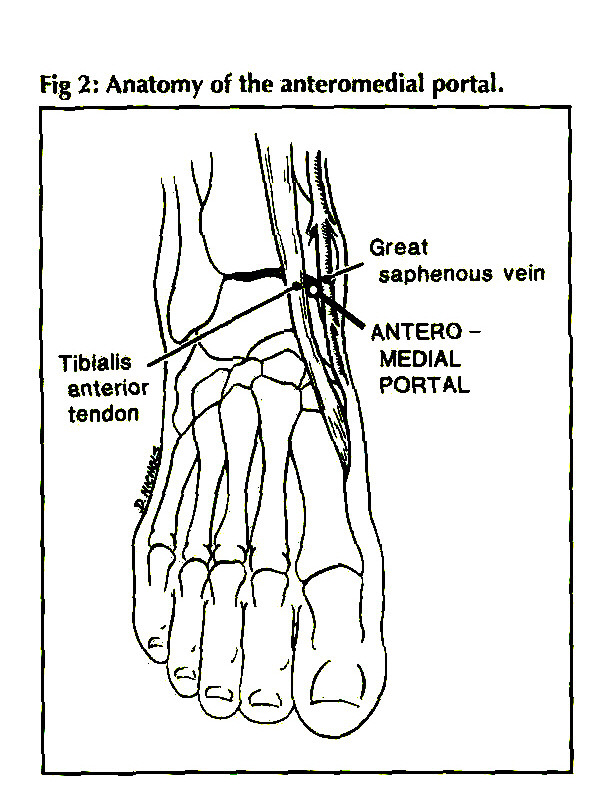 CURRENT CONCEPTS IN ANKLE ARTHROSCOPY