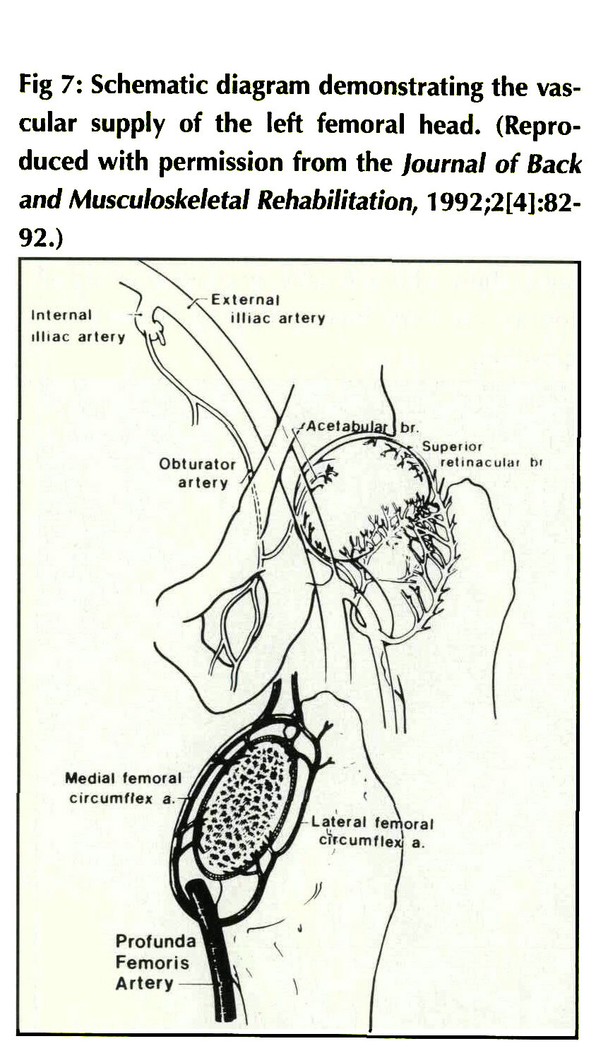 medium resolution of fig 7 schematic diagram demonstrating the vascular supply of the left femoral head