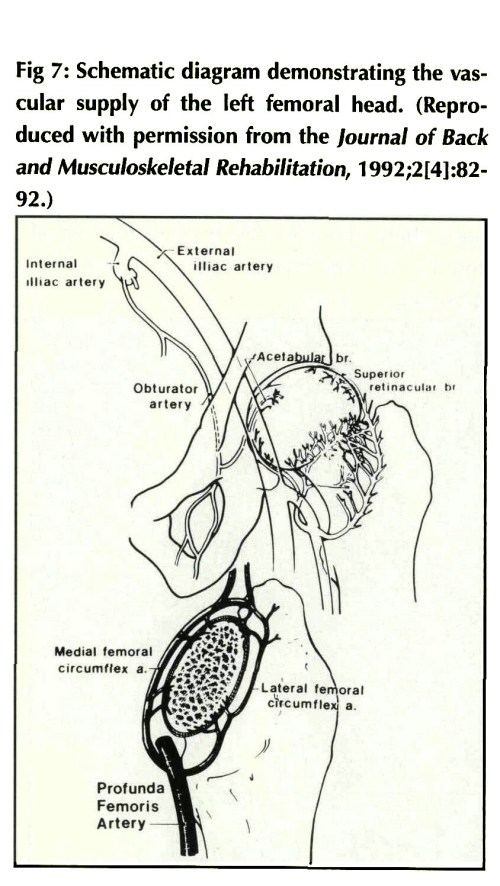 small resolution of fig 7 schematic diagram demonstrating the vascular supply of the left femoral head