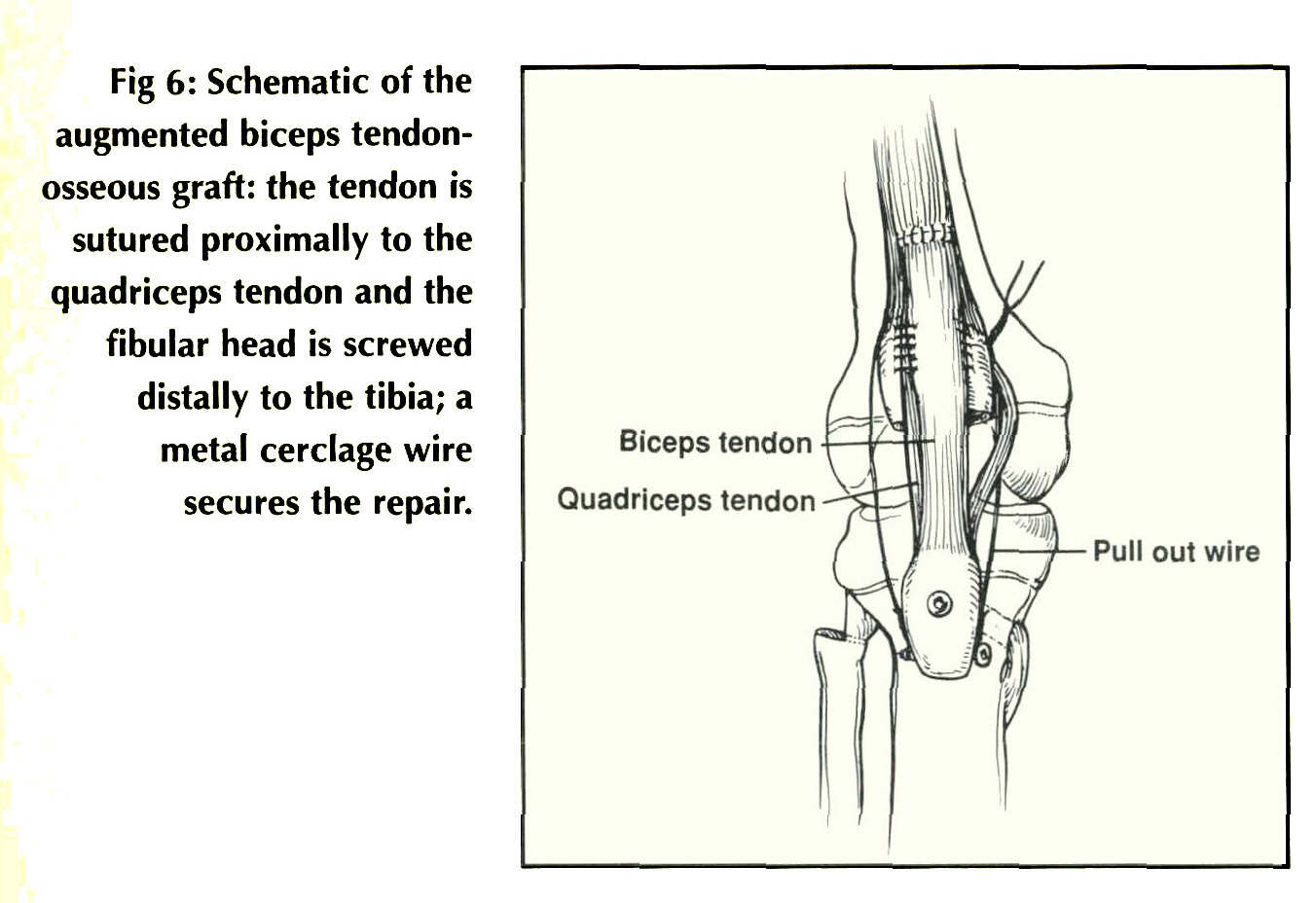 Patellar Tendon Reconstruction Augmented By A Free