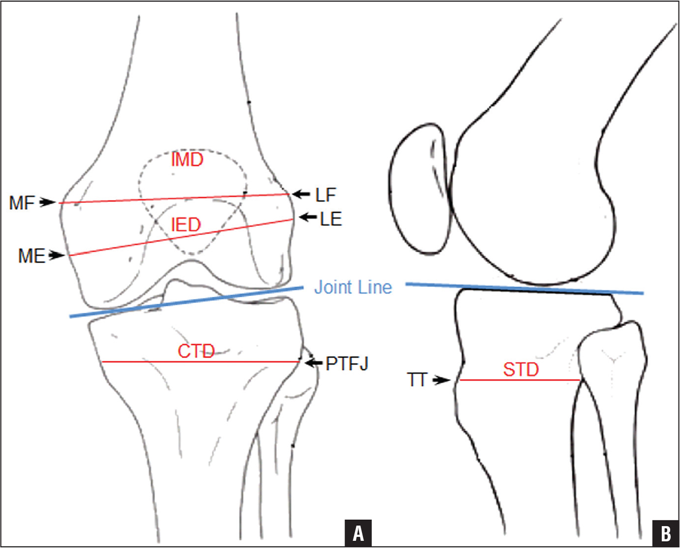 Calculating The Position Of The Joint Line Of The Knee Using Anatomical Landmarks