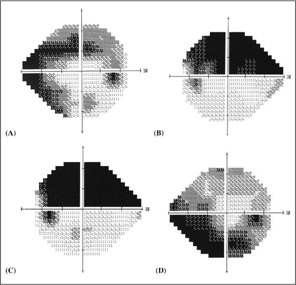 Toric Intraocular Lens Outcomes In Patients With Glaucoma