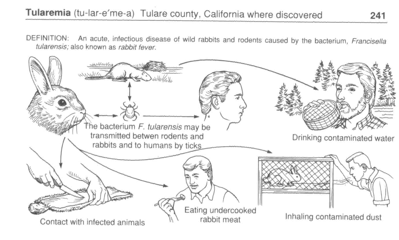 Tularemia - what is it infectious diseases. Prevention, treatment 70