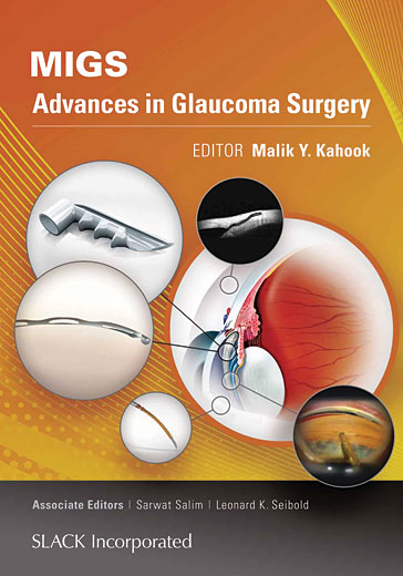 MIGS Advances in Glaucoma Surgery