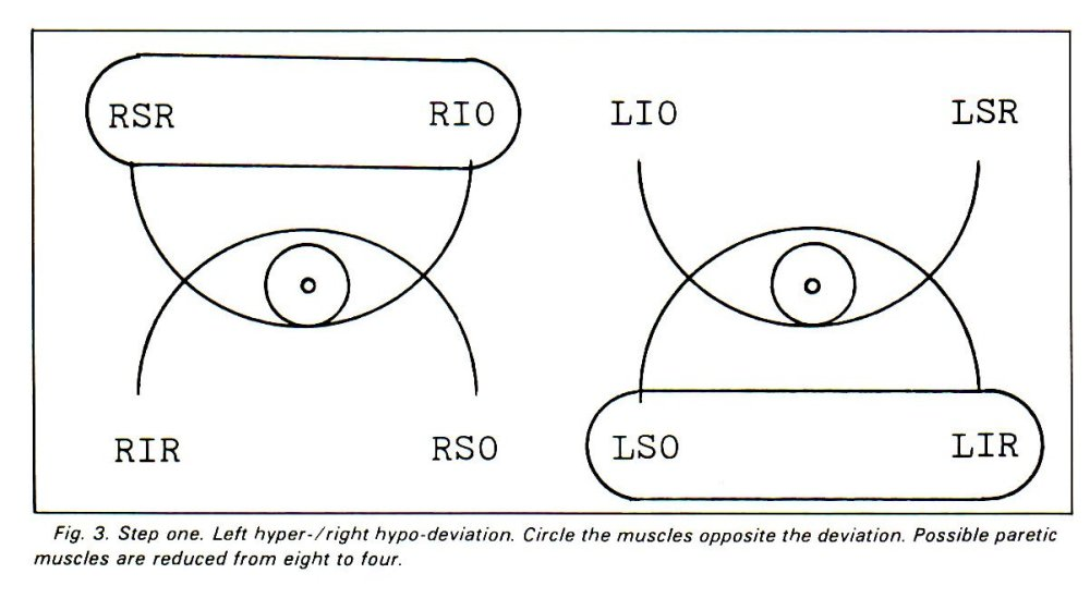 medium resolution of left hyper 7 right hypo deviation