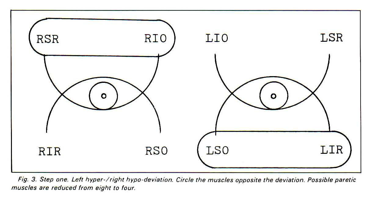 hight resolution of left hyper 7 right hypo deviation