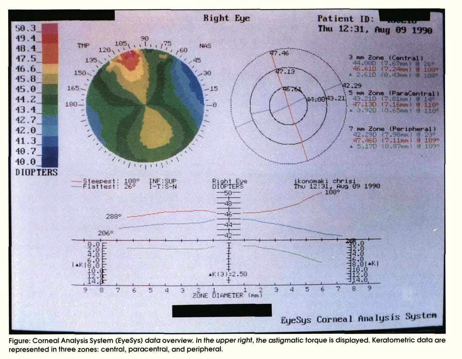 Comparison Of Keratometric Readings As Obtained By Javal Ophthalmometer And Cornealysis