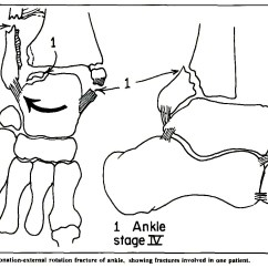 5 1 Rotation Diagram Car Electrical Wiring Reconstruction Of Ankle Malunion Indications And Results
