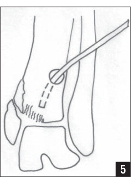 Intraoperative Fabrication of Bone Tamps for Indirect