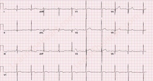 Hypertrophic Obstructive Cardiomyopathy (HOCM) ECG Review - Criteria and  Examples | LearntheHeart.com