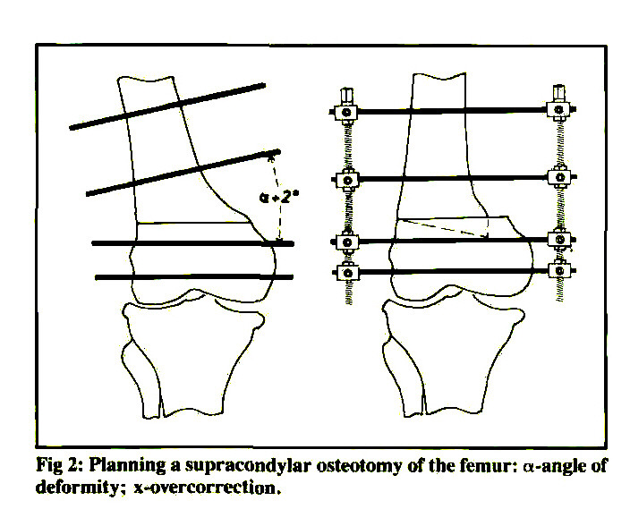 Tibial and Femoral Osteotomies in Osteoarthritis of the Knee