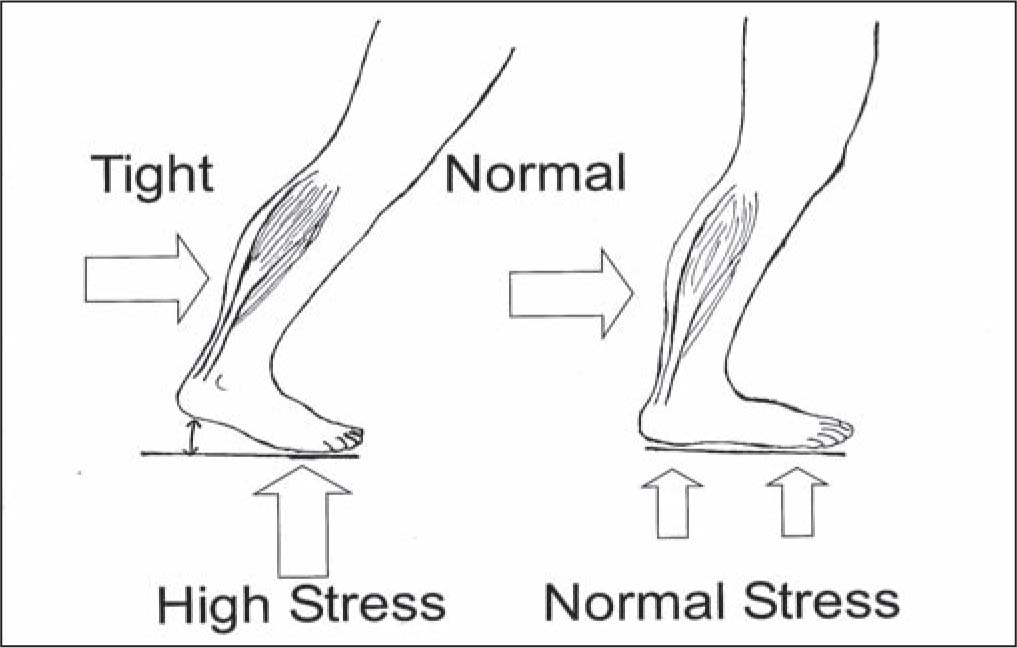 Tendon Lengthening for Neuropathic Foot Problems