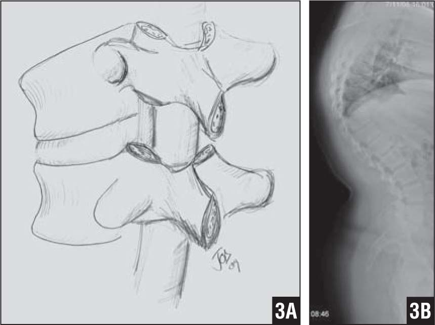The Use of Spinal Osteotomy in the Treatment of Spinal