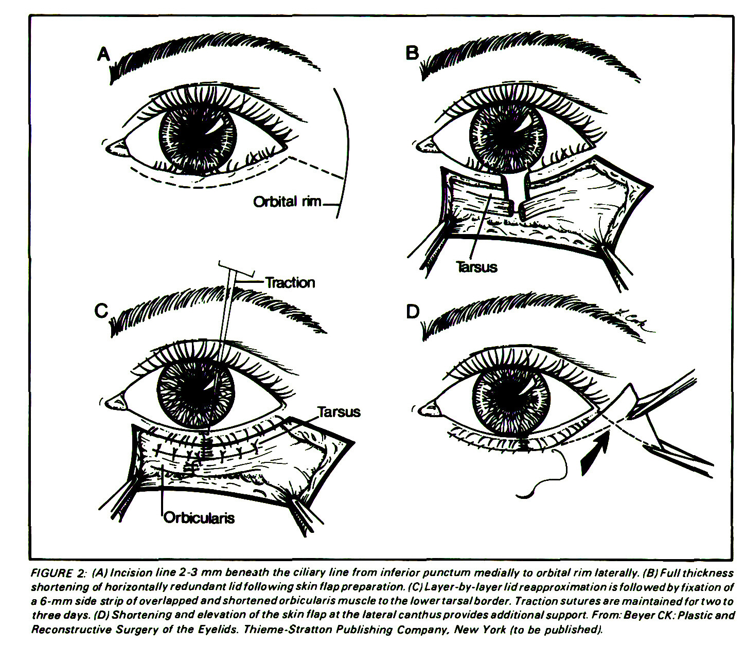 Modification of the Hill Procedure for Recurrent