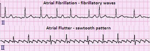 Image result for atrial fibrillation