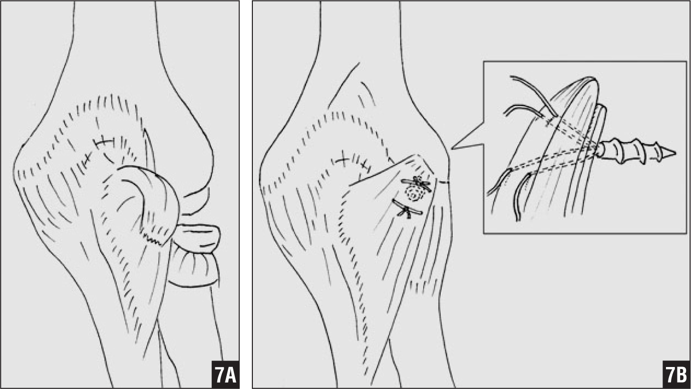 Soft Tissue Constraint Injuries in Complex Elbow