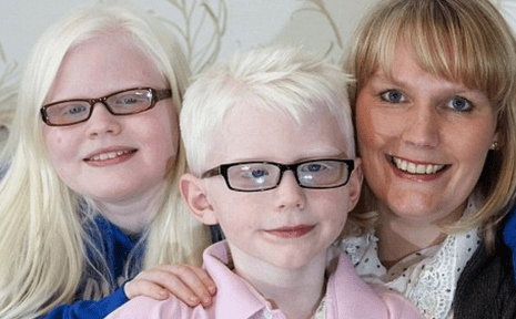 http://www.dailymail.co.uk/femail/article-2385463/my-albino-children-stars--Mother-wont-let-son-daughter-held-back.html