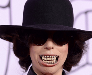 http://www.dailymail.co.uk/tvshowbiz/article-2486849/Lady-Gaga-sports-terrifying-toothy-smile-goes-trousers-YouTube-Music-Awards.html