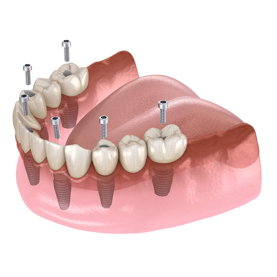 Implantes dentales All on 6
