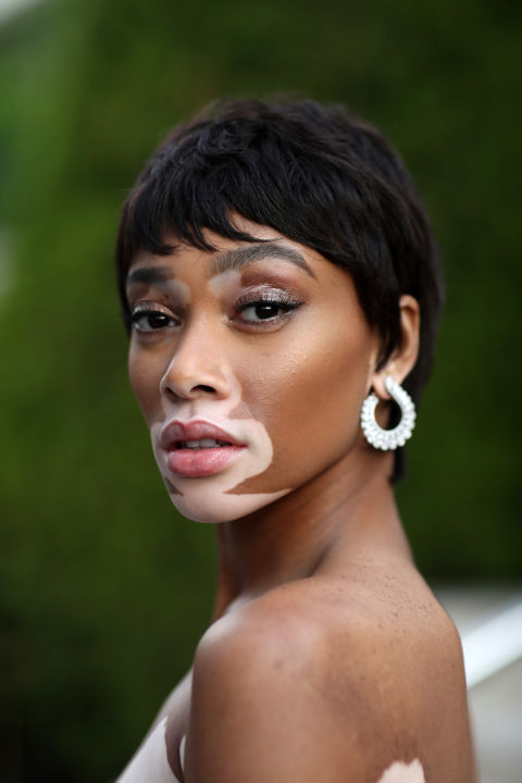Or, you could go the old faithful route with a classic Audrey Hepburn-esquepixie à la Winnie Harlow.