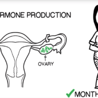 Permanent-Birth-Control-opt
