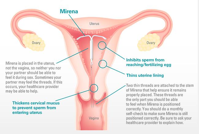 Mirena IUD - MacArthur Medical Center