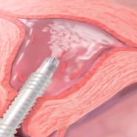 HTA Endometrial Ablation for Menorrhagia - MacArthur Medical Center