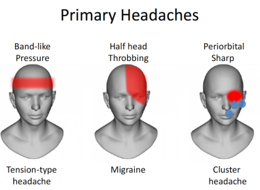 diagnose headache types from