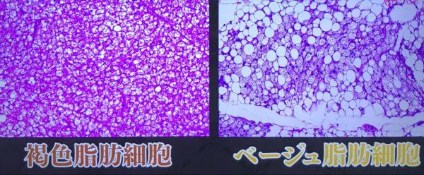 【ダイエット】褐色細胞が脂肪を燃やす~寒冷刺激と食べ物で増やせる