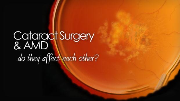 Cataract surgery won't influence dry macular degeneration