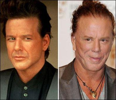 Διάσημοι σταρ του Hollywood πριν και μετά τις πλαστικές! - πριν και μετά, διάσημοι, hollywood, Celebrities