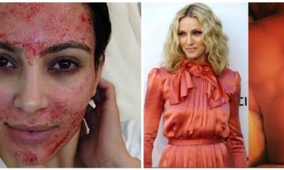 """celebrities με τις πιο περίεργες """"θεραπείες"""" ομορφιάς"""