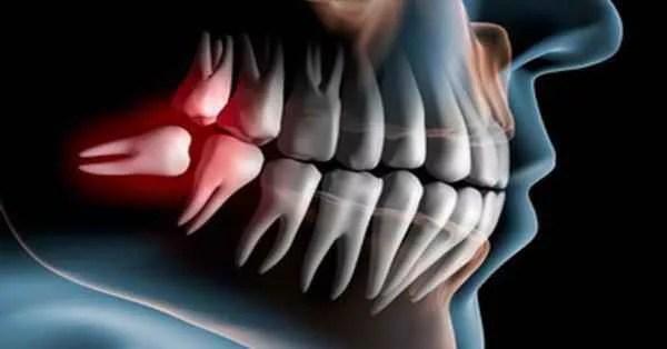 Сенсационное открытие калифорнийских стоматологов - зубы могут вырасти в любом возрасте!