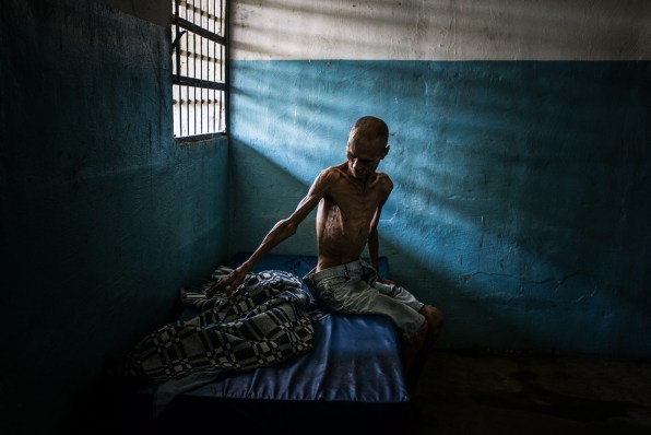 Omar Mendoza souffre de schizophrénie et de malnutrition sévère : il ne pèse que 35 kilos. L'hôpital psychiatrique où il se trouve est paralysé par une grave pénurie de nourriture et de médicaments. 25 août 2016. © Meridith Kohut pour The New York Times Omar Mendoza suffers from schizophrenia, and also from severe malnutrition: he weighs only 35 kilos [77 pounds]. The state psychiatric hospital where he is has been crippled by acute shortages of food and medicine. August 25, 2016. © Meridith Kohut for The New York Times
