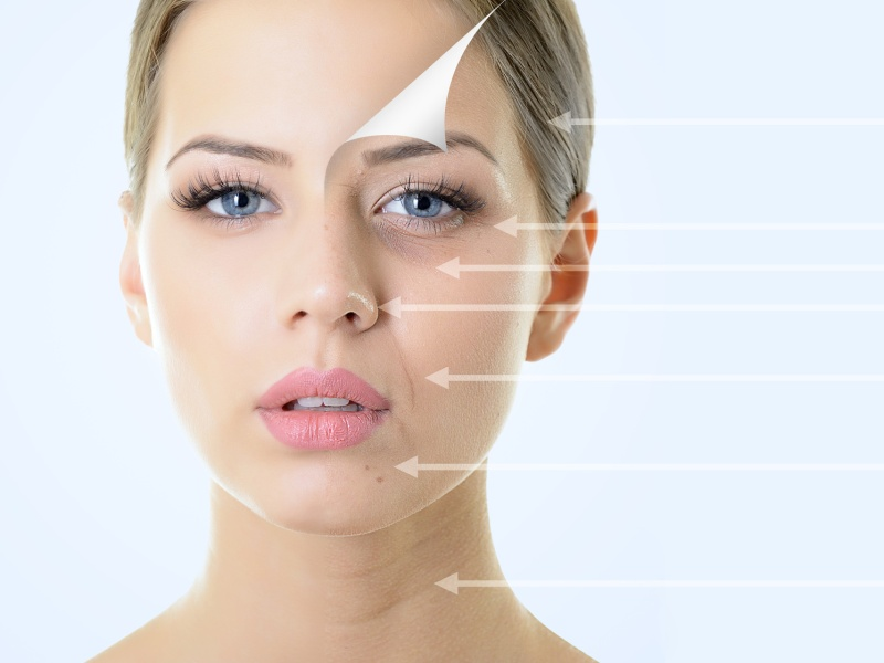 Restinox Madeira Holiday Package - Aesthetic treatment with hyaluronic acid + Botox + Wires (5)