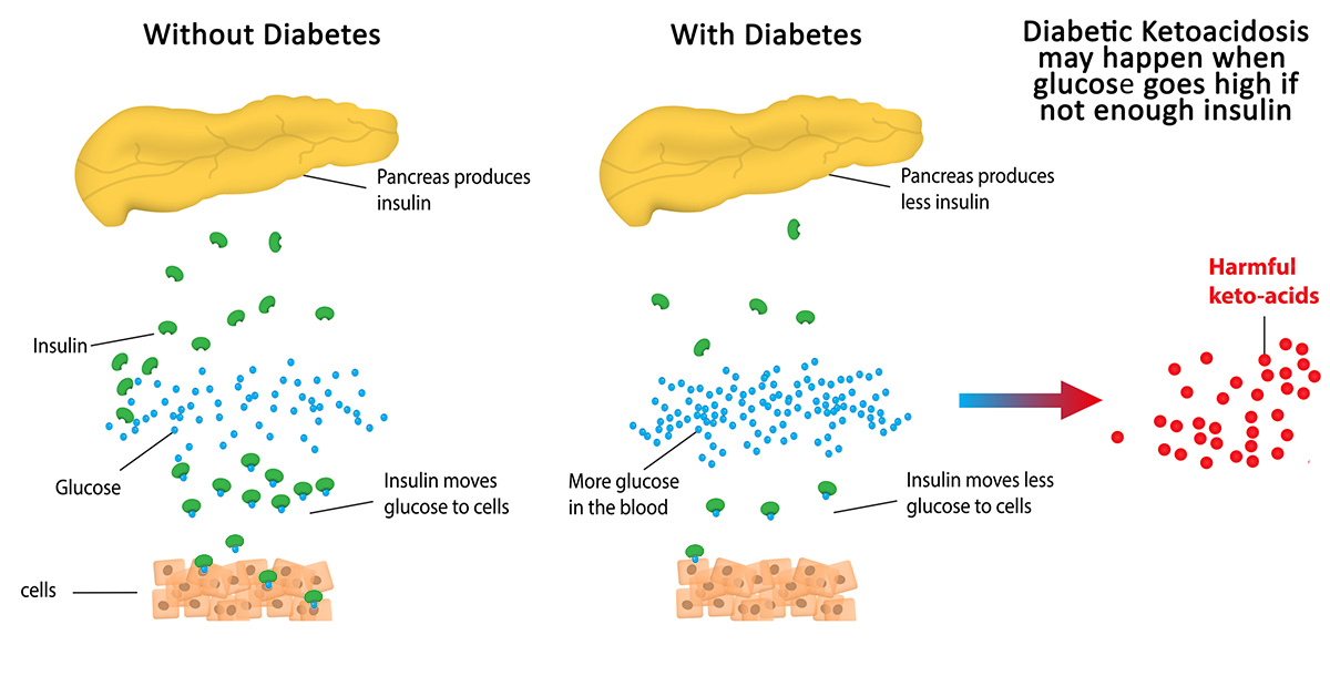 About Diabetes  The Madison Clinic