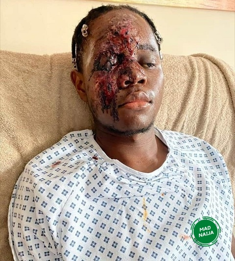 The black man was run over by some racist white men