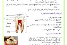 Photo of تسوّس الأسنان