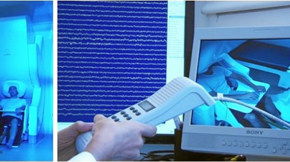 La UPM lidera una investigación internacional en la búsqueda de un biomarcador temprano del Alzheimer