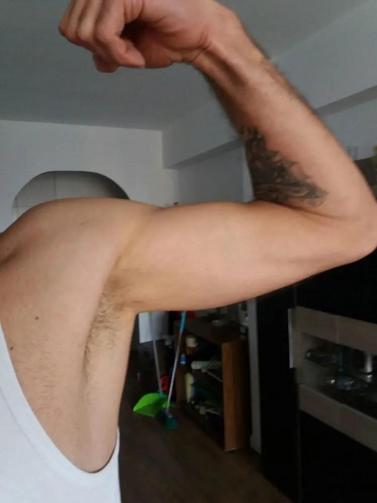 Lesiones agudas del Bíceps distal. Lesión tendinosa
