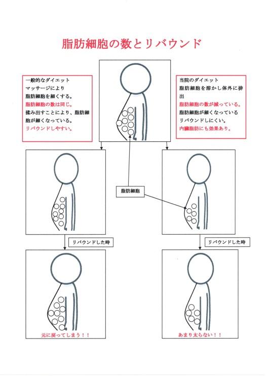 """高知 ダイエット セルライト 脂肪細胞 リバウンド"""""""""""""""""""
